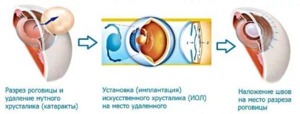 Замена хрусталика в глазу