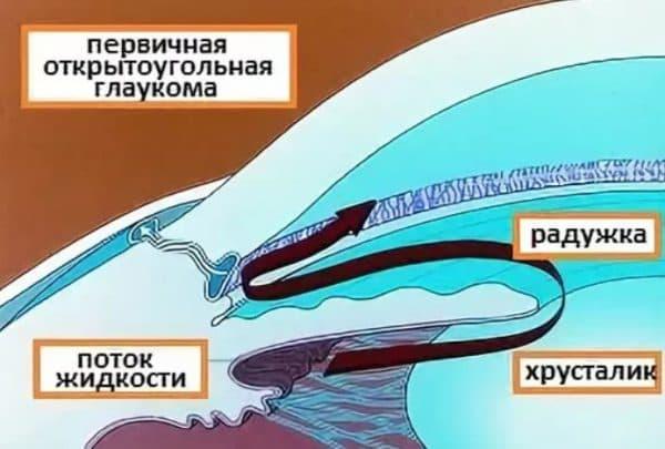 Анатомия глаза при развитии открытоугольной глаукомы