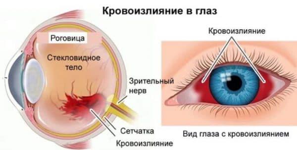 Анатомия глаза при кровоизлиянии