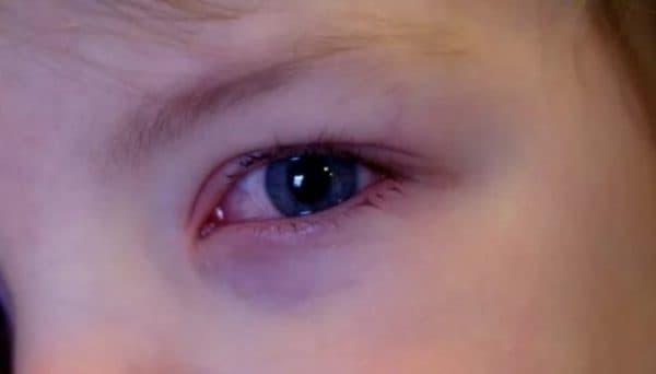 Красные белки и кожа вокруг глаз