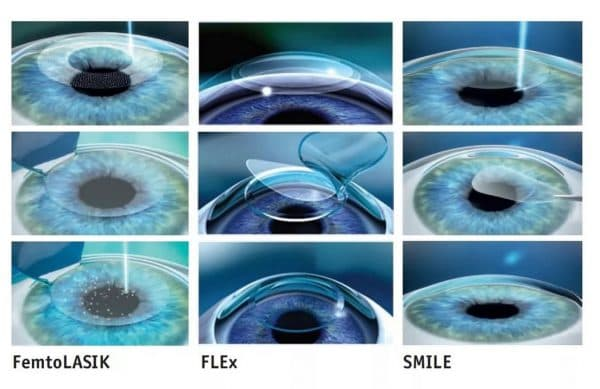 Технологии лазерной коррекции зрения