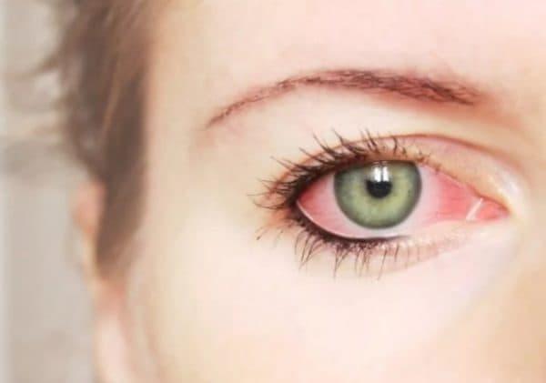 Аллергическое покраснение глаз