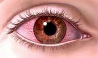 Причины красных белков глаз