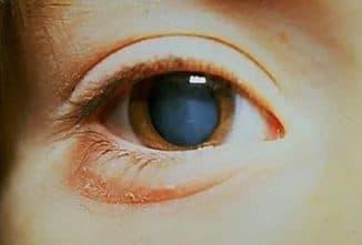 Что представляет собой катаракта глаза