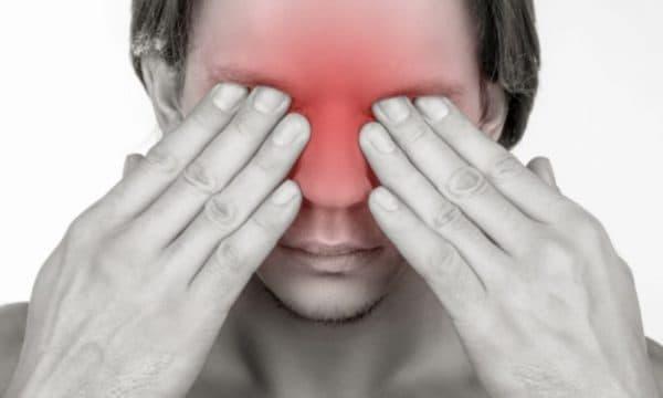 Острая боль - первый признак ожога сваркой