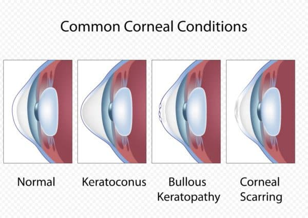 Буллезная кератопатия