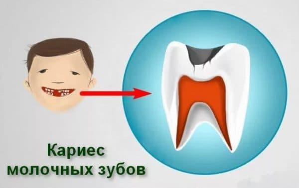 Кариес молочных зубов и красные круги под глазами