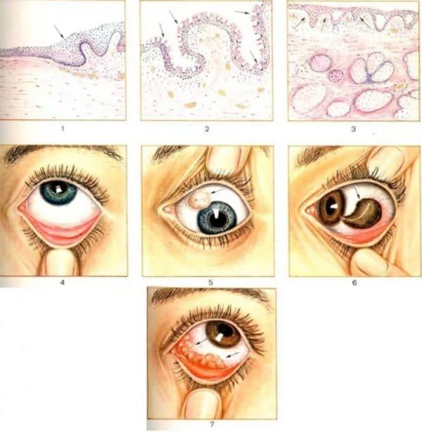 Дифференциальная диагностика кист конъюнктивы