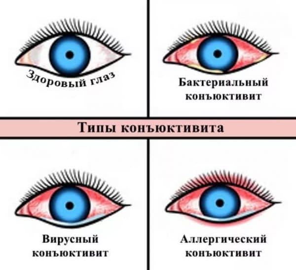 Дифференциальная диагностика конъюнктивита