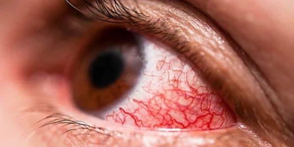 Красные прожилки на белке глаза