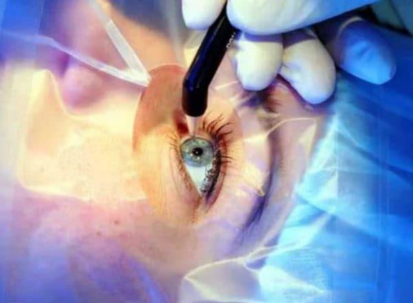 Лазерная терапия кератопатии
