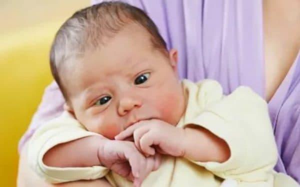 Фото физиологической нормы у новорожденного