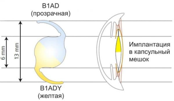 Однокомпонентная асферическая интраокулярная линза
