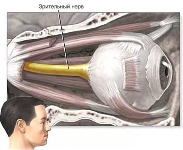 Повреждение зрительного нерва