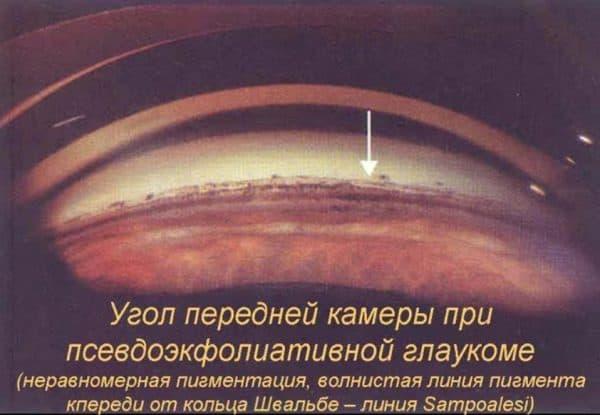 Псведоэксфолиативная глаукома