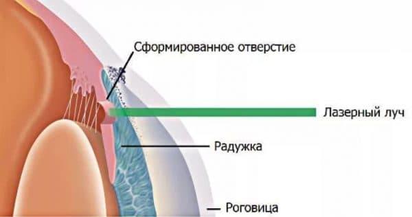 Схема проведения лазерной иридэктомии