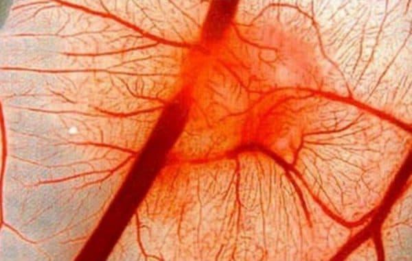 Истончение кровеносных сосудов