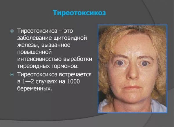 Тиротоксикоз