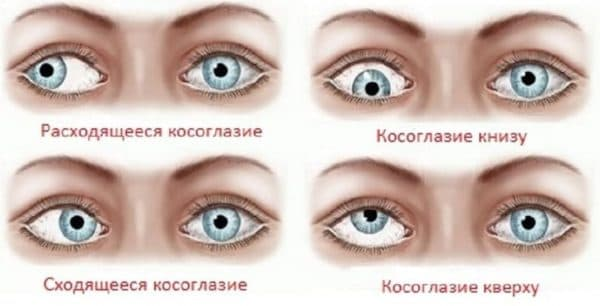 Разновидности косоглазия (фото)