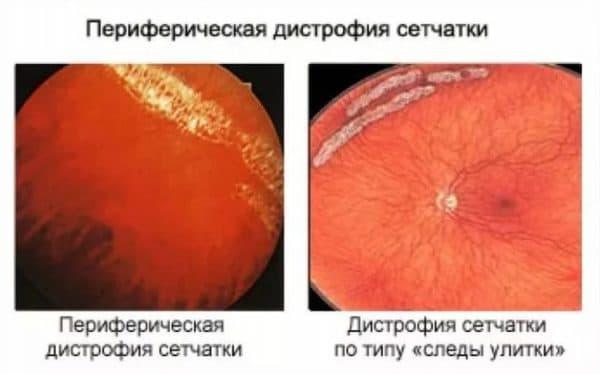 Глазное дно при отслойке сетчатки глаза