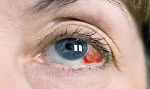 Кровоизлияние в склеру
