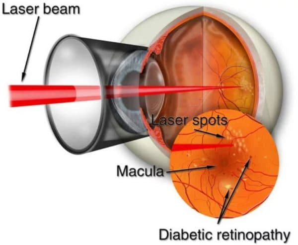 Лазерное лечение отслойки сетчатки глаза