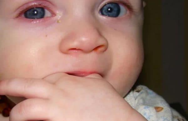 Почему гноятся глаза у ребенка при простуде