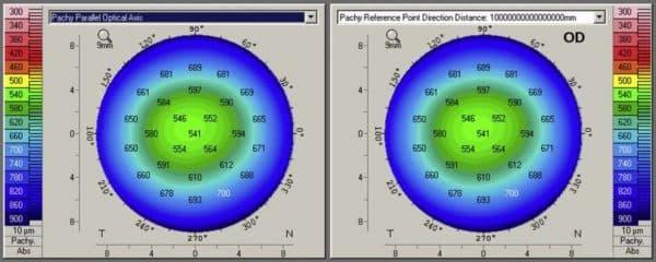 Показатели пахиметрии и их расшифровка в офтальмологии