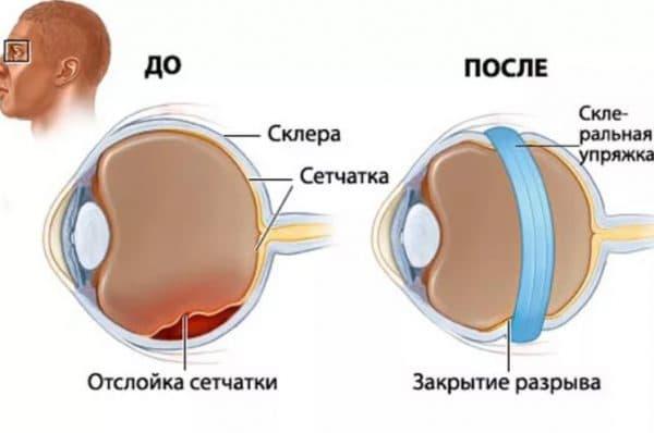 Склерозирование