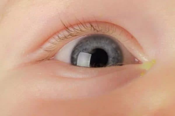 Почему гноятся глаза у ребенка