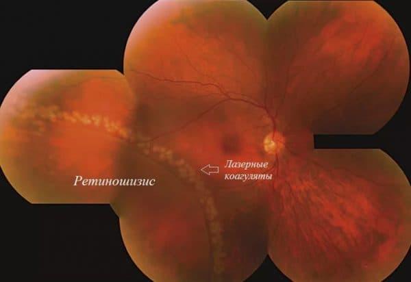 Лазерная витрэктомия при ретиношизисе