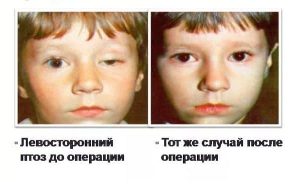 Врожденный частичный птоз до и после операции