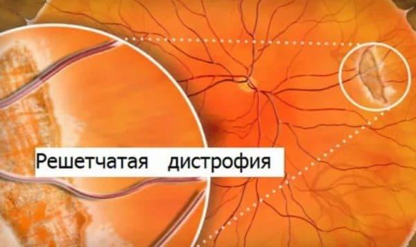 Глазное дно решетчатая дистрофия сетчатки