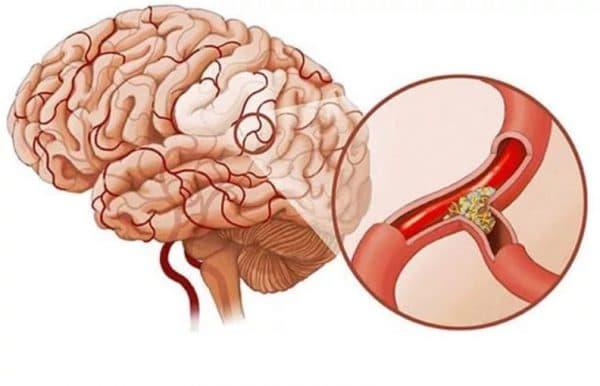 Атросклероз сосудов головного мозга и скотома глаза