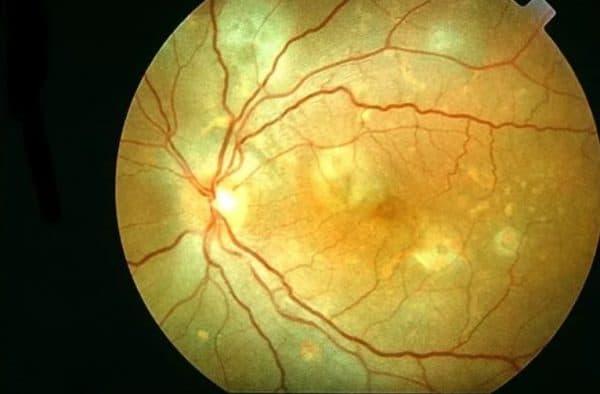 Центральная серозная хориоретинопатия фото