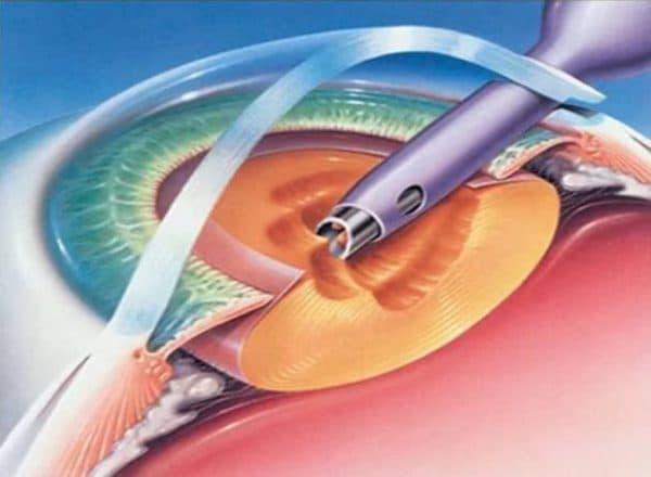 Факоэмульсификация глаза