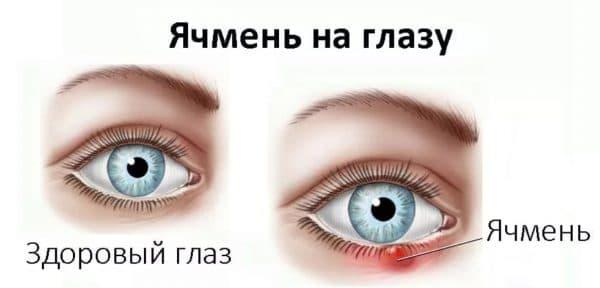 Лечение ячменя на глазу тетрациклиновой мазью