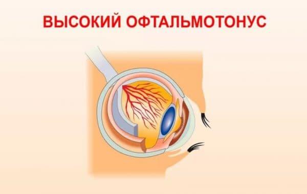 Офтальмотонус