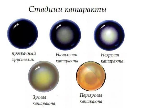 Виды катаракты глаза