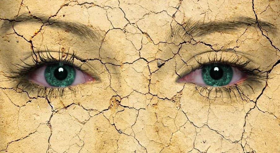Синдром сухого глаза (ССГ), симптомы и лечение