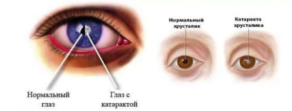 Катаракта глаза и скотома