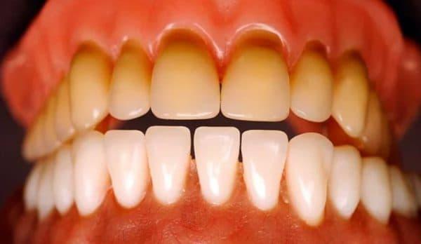 Потемнение зубной эмали от тетрациклина