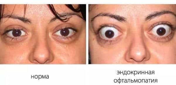 Нормальные глаза и выпученные