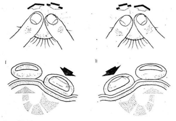 Техника пальцевого метода тонометрии