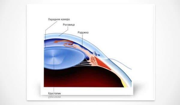 Закрытоугольная глаукома и глазные капли Полинадим