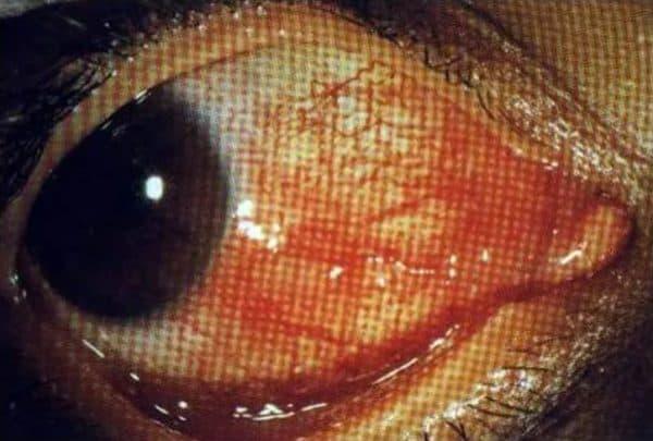 Диффузный эписклерит