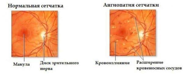 Здоровая сетчатка глаза и с ангиопатией