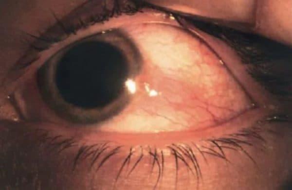 Узелковый эписклерит