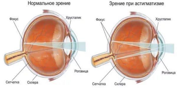 Анатомия органов зрения
