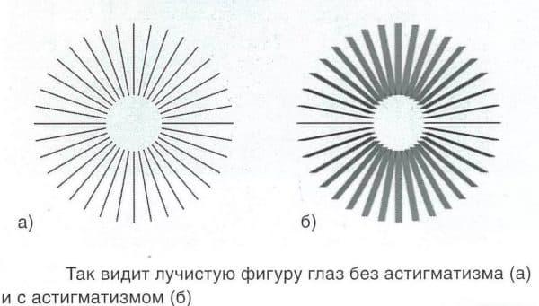 Лучистая фигура для оценки остроты зрения